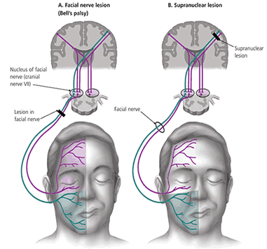Figure 1: Corticonuclear and lower motor neuron pathways involved in facial expression.